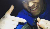 Keita Kurakami i oszkodzony maly palec po walce na Great Roof